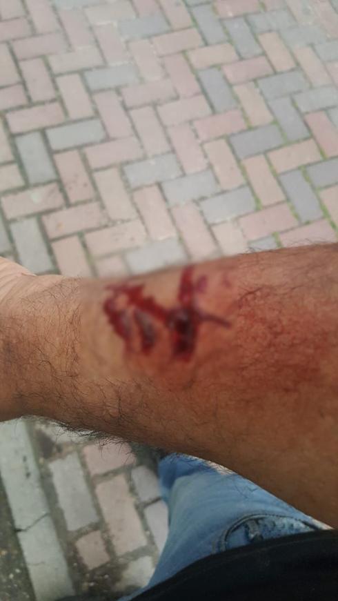 הפציעה ביד של גיורא לוי. צילום: באדיבותו